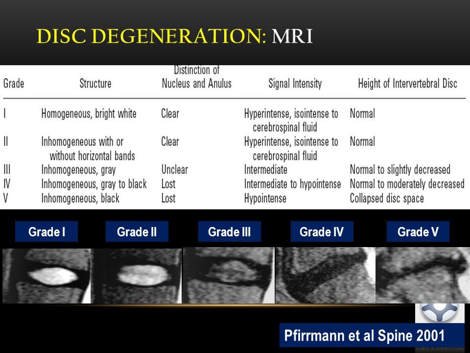 DISC DEGENERATION: MRI Pfirrmann et al Spine 2001 Grade I Grade IIGrade IIIGrade IVGrade V