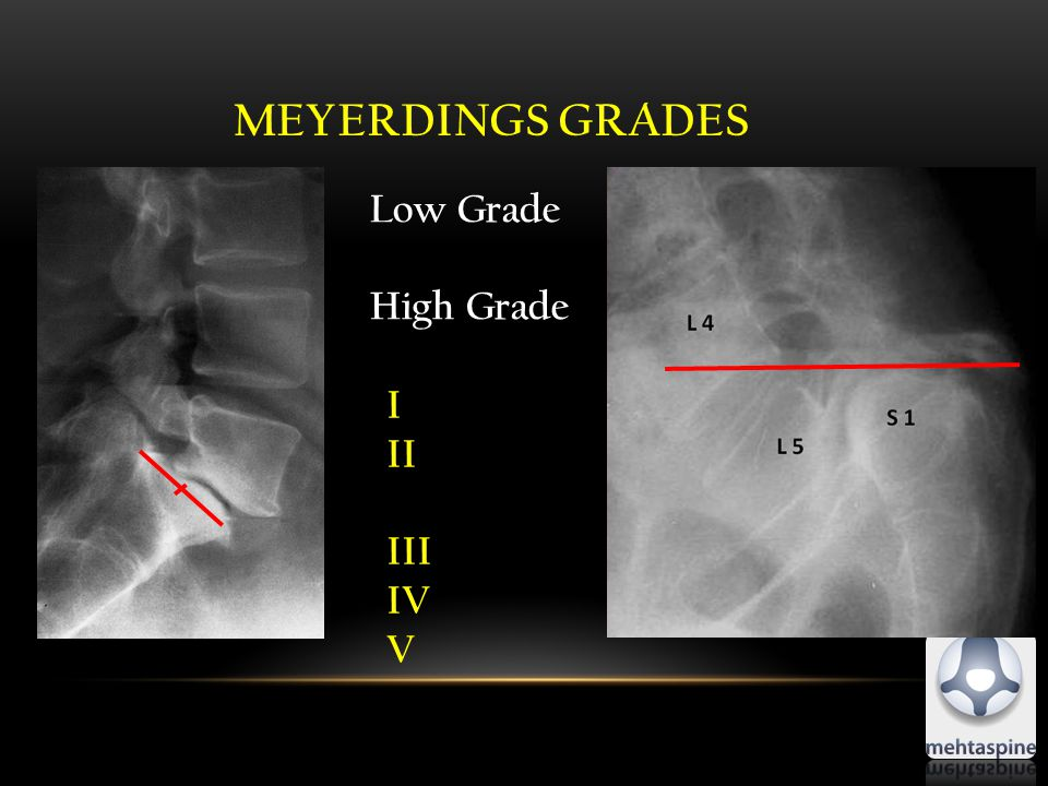 MEYERDINGS GRADES Low Grade High Grade I II III IV V