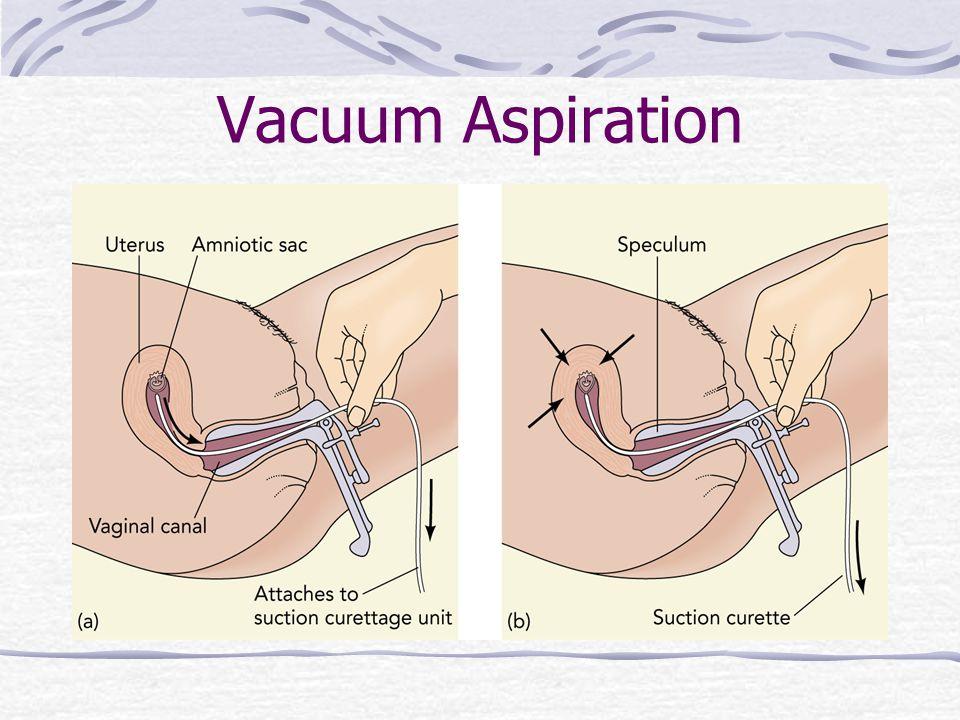 Vacuum Aspiration