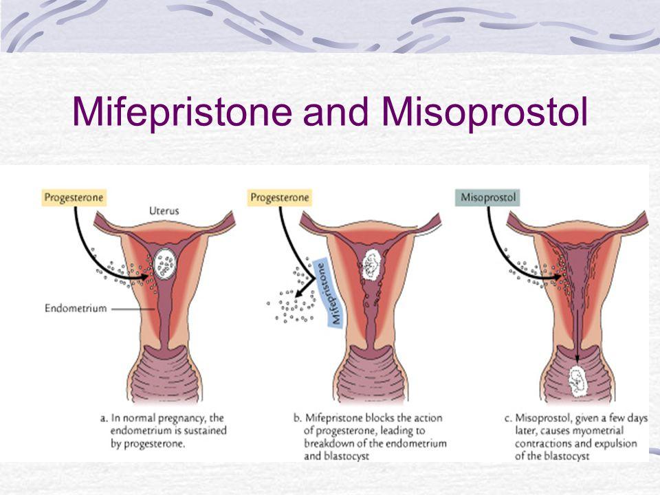 Mifepristone and Misoprostol
