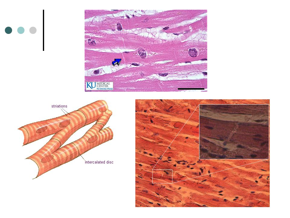 Type 3: Cardiac Muscle This is the heart muscle Under a microscope, cardiac muscle appears striated like voluntary muscles BUT cardiac muscle is invol