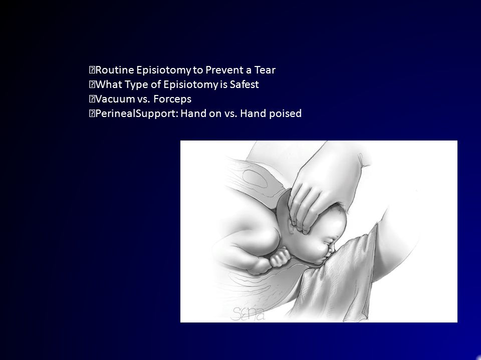 Routine Episiotomy to Prevent a Tear What Type of Episiotomy is Safest Vacuum vs. Forceps PerinealSupport: Hand on vs. Hand poised