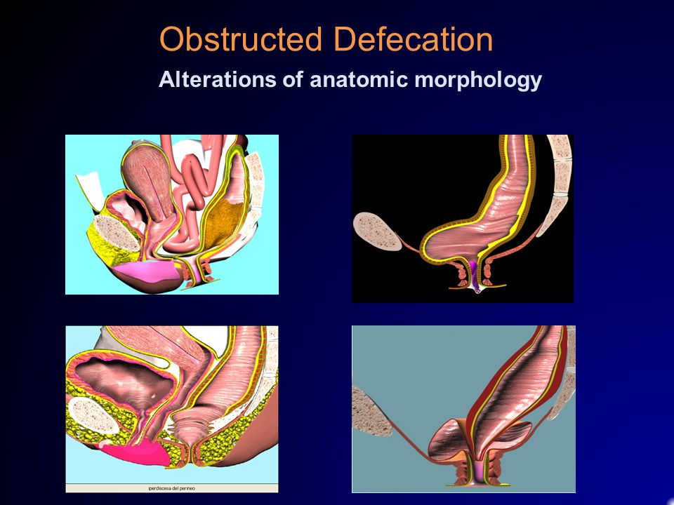Obstructed Defecation Alterations of anatomic morphology
