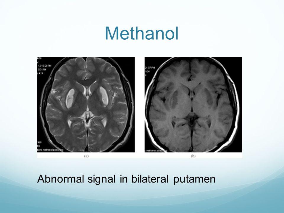 Methanol Abnormal signal in bilateral putamen
