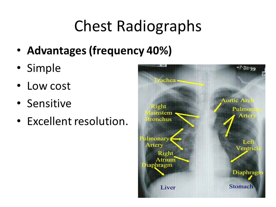 Chest Radiographs Advantages (frequency 40%) Simple Low cost Sensitive Excellent resolution.