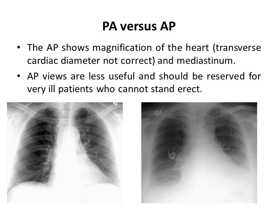 PA versus AP The AP shows magnification of the heart (transverse cardiac diameter not correct) and mediastinum. AP views are less useful and should be