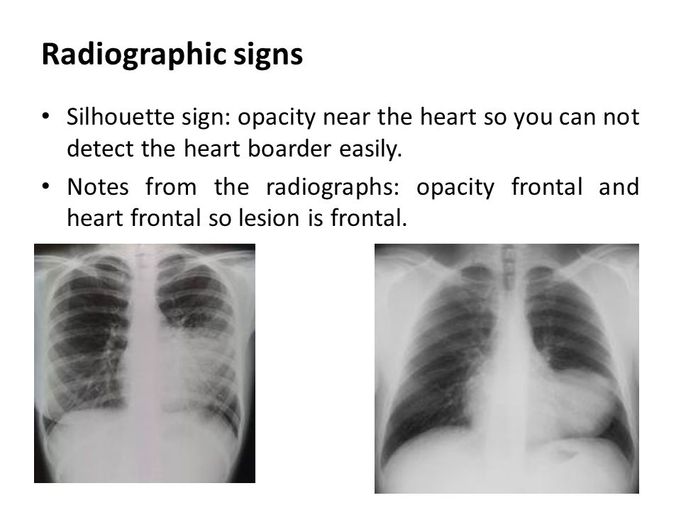 Radiographic signs Silhouette sign: opacity near the heart so you can not detect the heart boarder easily. Notes from the radiographs: opacity frontal