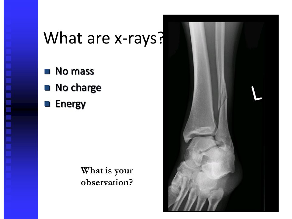 What are x-rays? No mass No mass No charge No charge Energy Energy What is your observation?