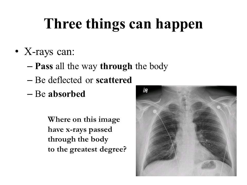 Three things can happen X-rays can: – Pass all the way through the body – Be deflected or scattered – Be absorbed Where on this image have x-rays pass