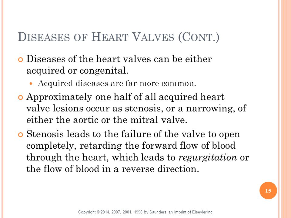 D ISEASES OF H EART V ALVES (C ONT.) Diseases of the heart valves can be either acquired or congenital. Acquired diseases are far more common. Approxi