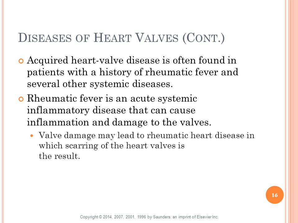 D ISEASES OF H EART V ALVES (C ONT.) Acquired heart-valve disease is often found in patients with a history of rheumatic fever and several other syste
