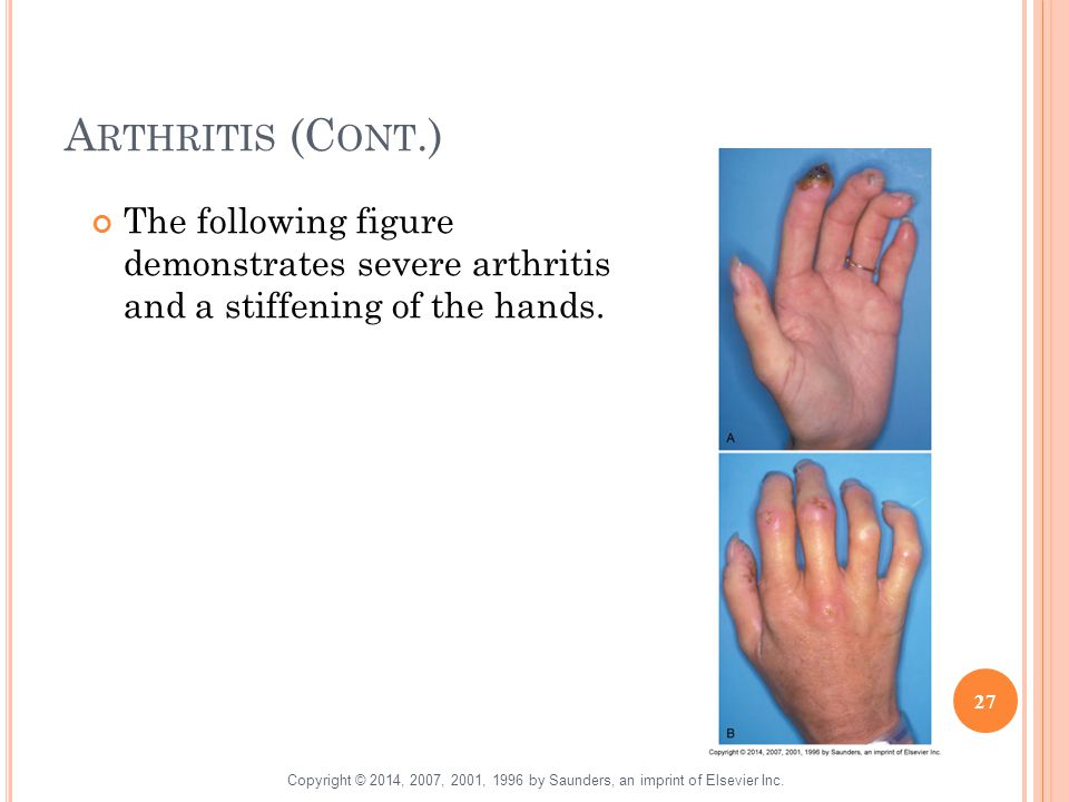 A RTHRITIS (C ONT.) The following figure demonstrates severe arthritis and a stiffening of the hands. 27 Copyright © 2014, 2007, 2001, 1996 by Saunder