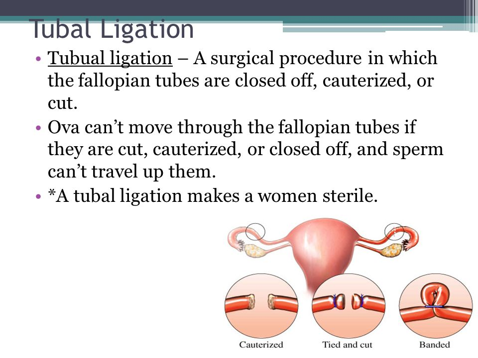 Tubal Ligation Tubual ligation – A surgical procedure in which the fallopian tubes are closed off, cauterized, or cut. Ova can't move through the fall