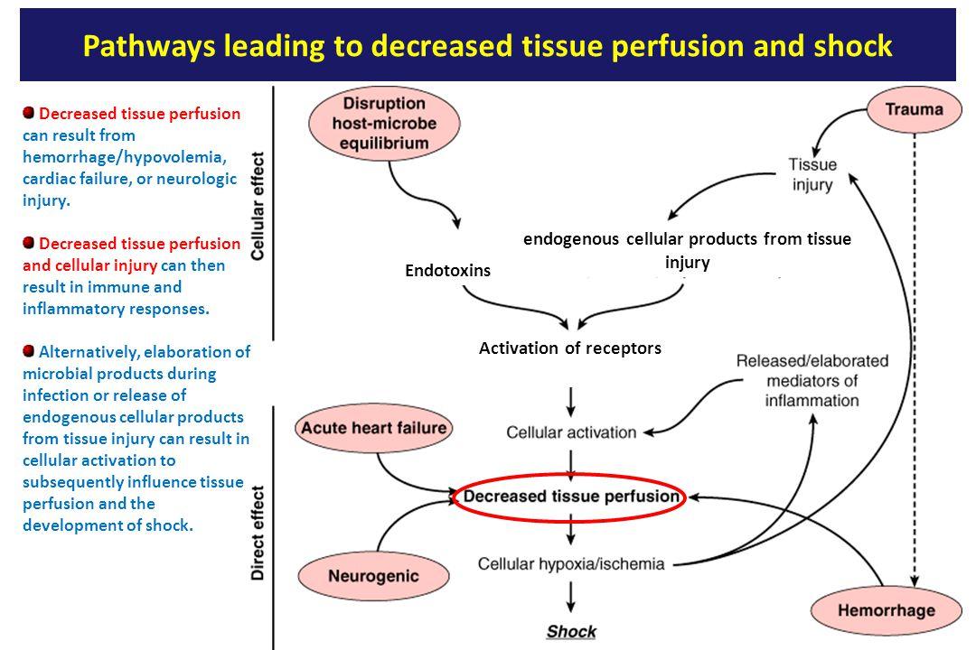 Pathways leading to decreased tissue perfusion and shock Decreased tissue perfusion can result from hemorrhage/hypovolemia, cardiac failure, or neurologic injury.