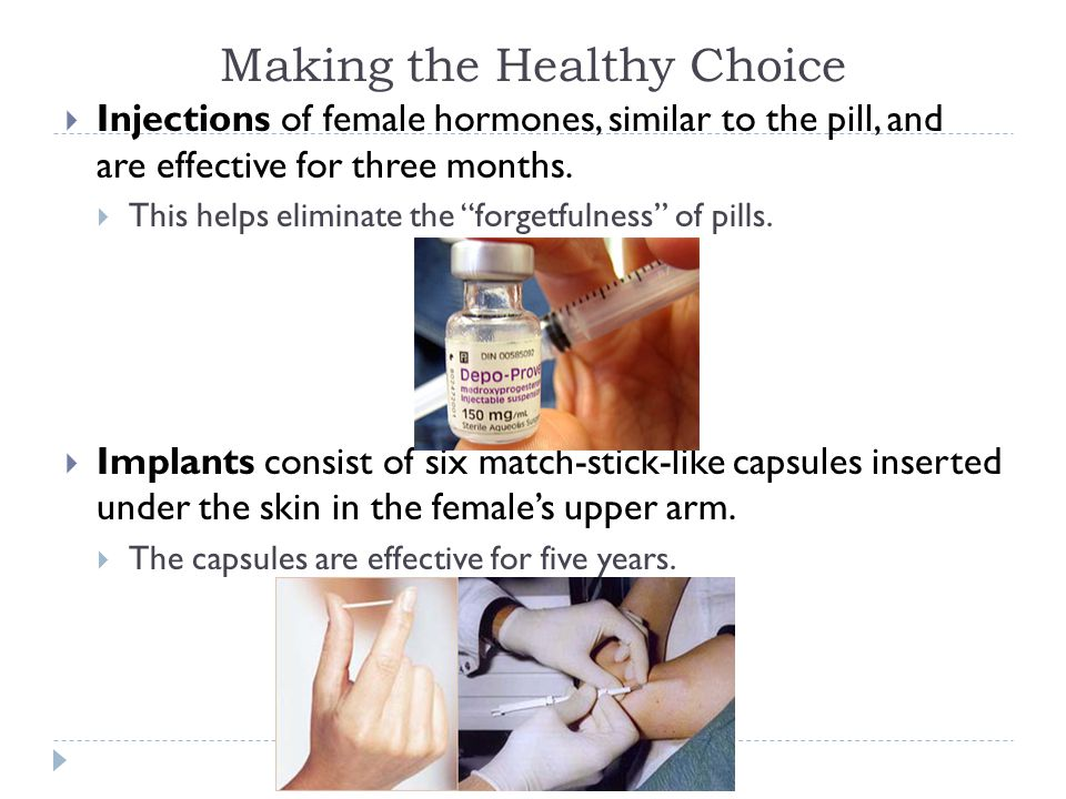 "Making the Healthy Choice  Injections of female hormones, similar to the pill, and are effective for three months.  This helps eliminate the ""forget"