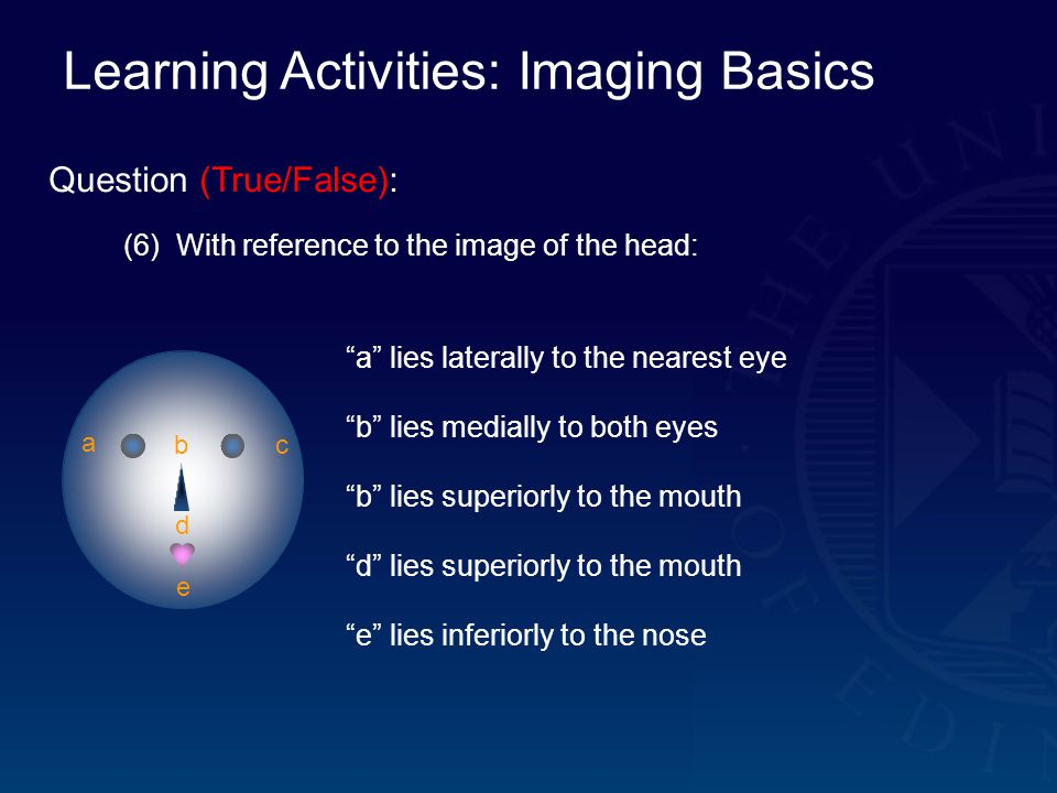 Learning Activities: Imaging Basics Question (True/False): (6) With reference to the image of the head: a bc d e a lies laterally to the nearest eye b lies medially to both eyes b lies superiorly to the mouth d lies superiorly to the mouth e lies inferiorly to the nose