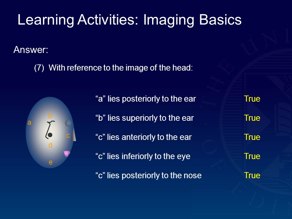 Learning Activities: Imaging Basics Answer: (7) With reference to the image of the head: a b c d e a lies posteriorly to the earTrue b lies superiorly to the earTrue c lies anteriorly to the earTrue c lies inferiorly to the eyeTrue c lies posteriorly to the noseTrue