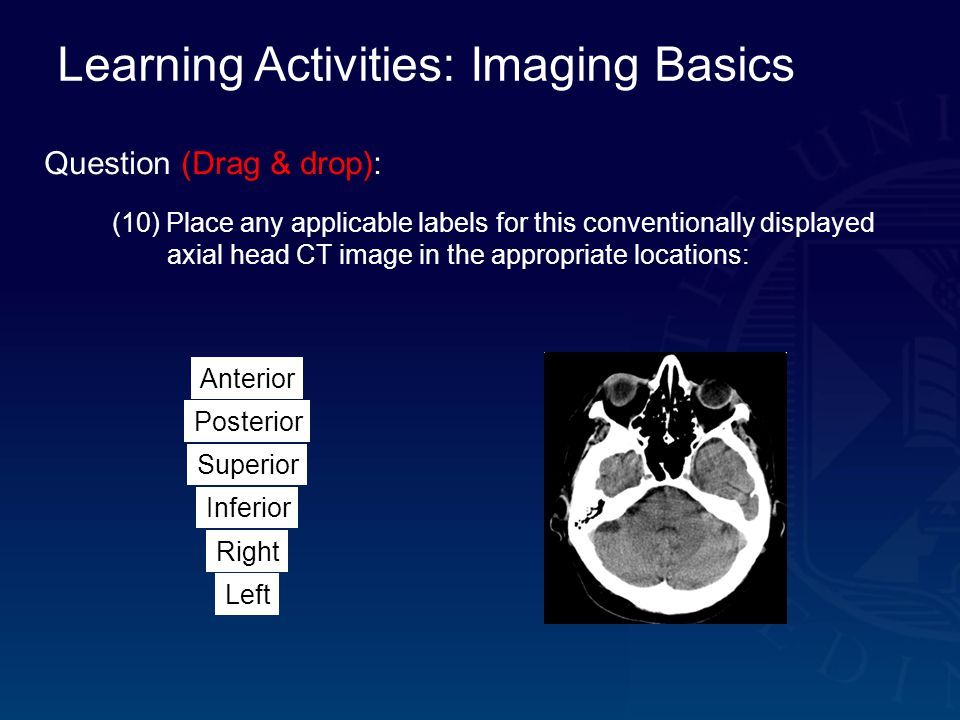 Learning Activities: Imaging Basics Question (Drag & drop): (10) Place any applicable labels for this conventionally displayed axial head CT image in the appropriate locations: Inferior Left Right Superior Posterior Anterior