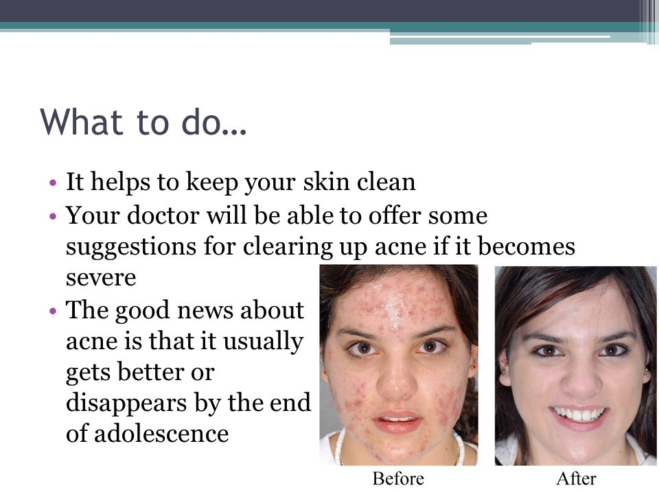 What to do… It helps to keep your skin clean Your doctor will be able to offer some suggestions for clearing up acne if it becomes severe The good new