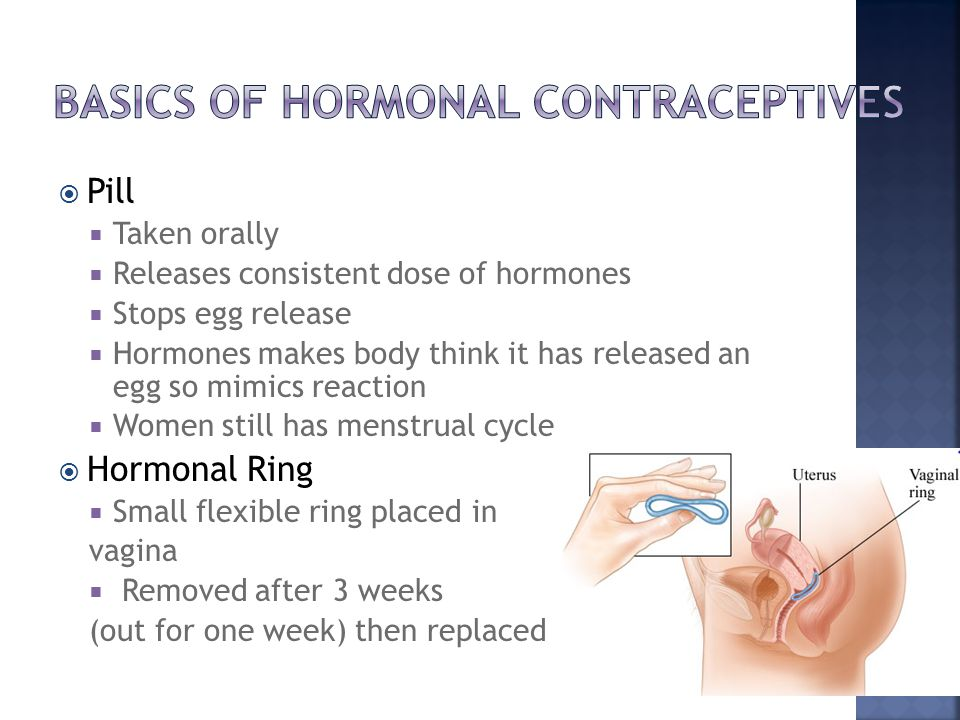  Pill  Taken orally  Releases consistent dose of hormones  Stops egg release  Hormones makes body think it has released an egg so mimics reaction