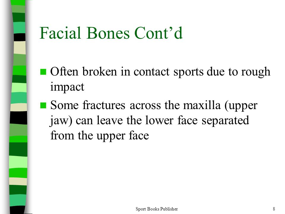 Sport Books Publisher8 Facial Bones Cont'd Often broken in contact sports due to rough impact Some fractures across the maxilla (upper jaw) can leave