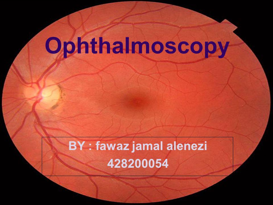 Ophthalmoscopy BY : fawaz jamal alenezi 428200054