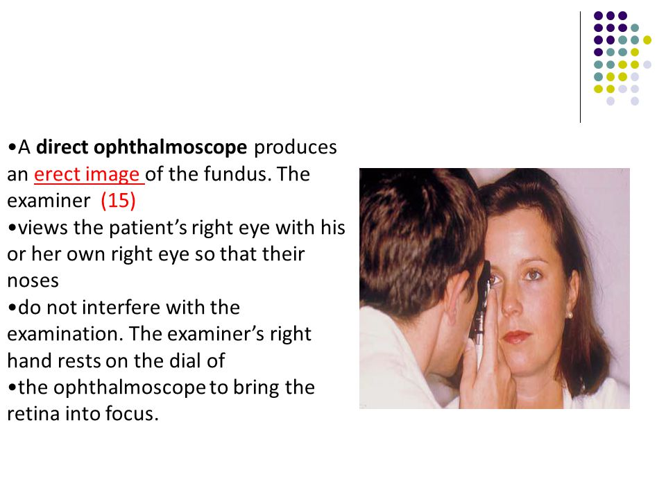A direct ophthalmoscope produces an erect image of the fundus. The examiner (15) views the patient's right eye with his or her own right eye so that t