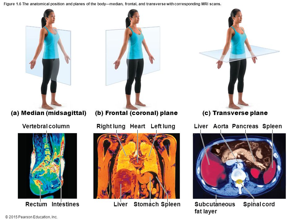 © 2015 Pearson Education, Inc. Figure 1.6 The anatomical position and planes of the body—median, frontal, and transverse with corresponding MRI scans.
