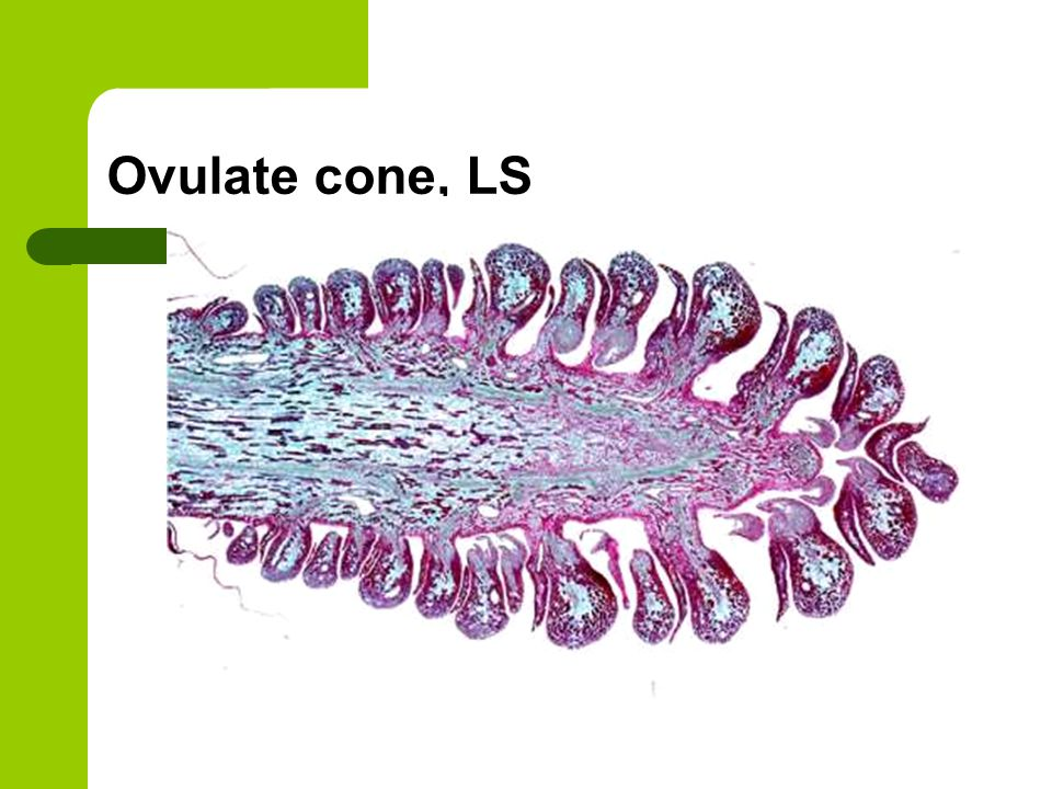 Ovulate cone, LS