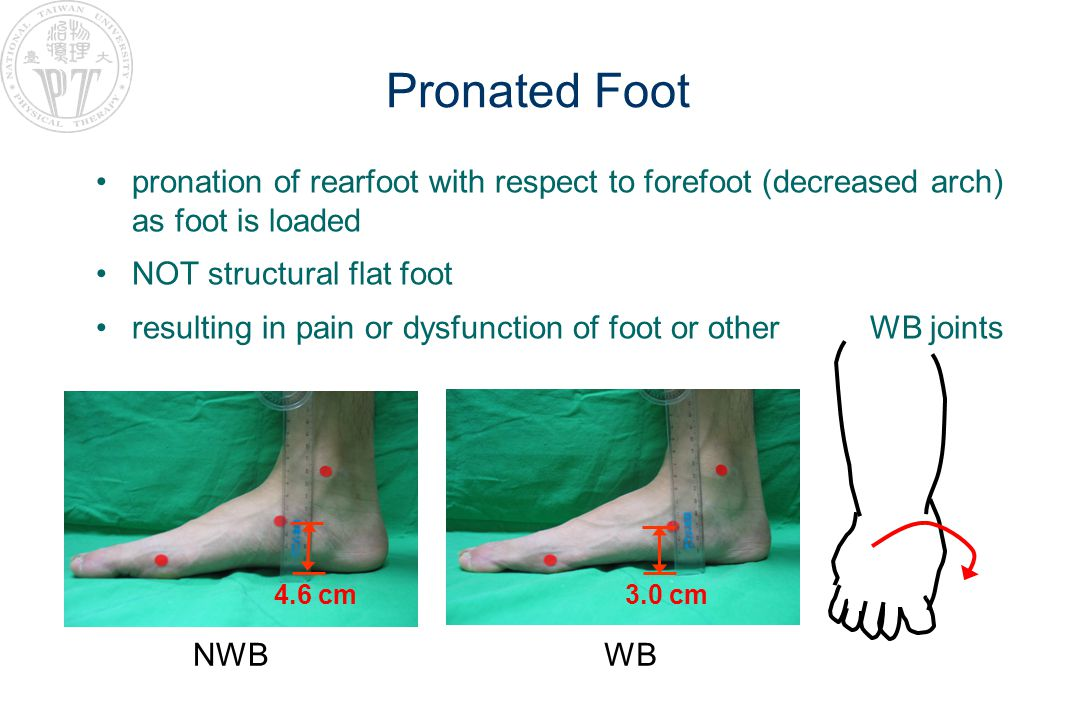 Pronated Foot pronation of rearfoot with respect to forefoot (decreased arch) as foot is loaded NOT structural flat foot resulting in pain or dysfunction of foot or other WB joints NWB 4.6 cm WB 3.0 cm