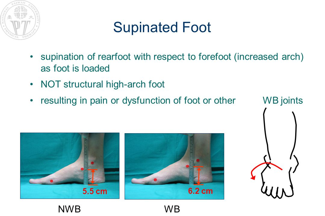Supinated Foot supination of rearfoot with respect to forefoot (increased arch) as foot is loaded NOT structural high-arch foot resulting in pain or dysfunction of foot or other WB joints NWB 5.5 cm WB 6.2 cm