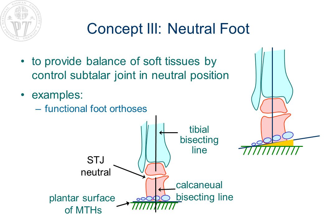 Concept III: Neutral Foot to provide balance of soft tissues by control subtalar joint in neutral position examples: –functional foot orthoses STJ neutral tibial bisecting line calcaneual bisecting line plantar surface of MTHs
