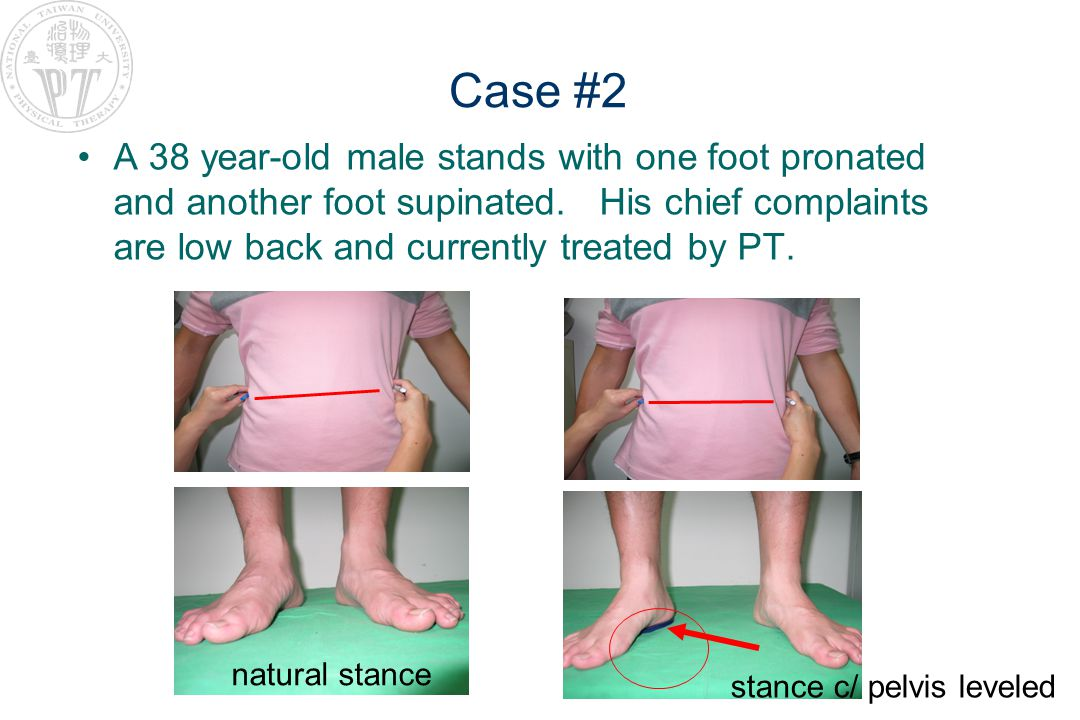 Case #2 A 38 year-old male stands with one foot pronated and another foot supinated.