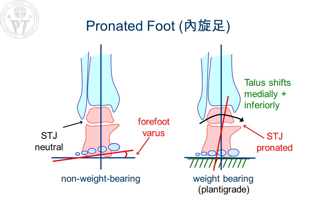 Pronated Foot ( 內旋足 ) non-weight-bearing weight bearing forefoot varus STJ pronated (plantigrade) Talus shifts medially + inferiorly STJ neutral