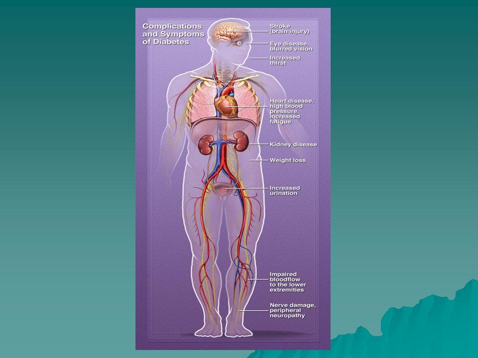 Progression of Type 2 DM PhaseInsulinGlucose 1N 2IGT 3IFG 4N DM -oral meds DM -oral meds 5 DM -insulin