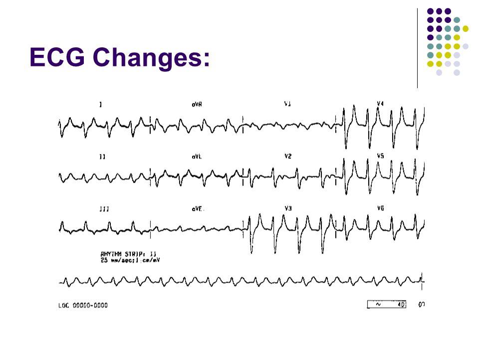 ECG Changes: