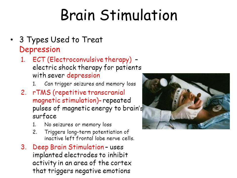 Brain Stimulation 3 Types Used to Treat Depression 1.ECT (Electroconvulsive therapy) – electric shock therapy for patients with sever depression 1.Can
