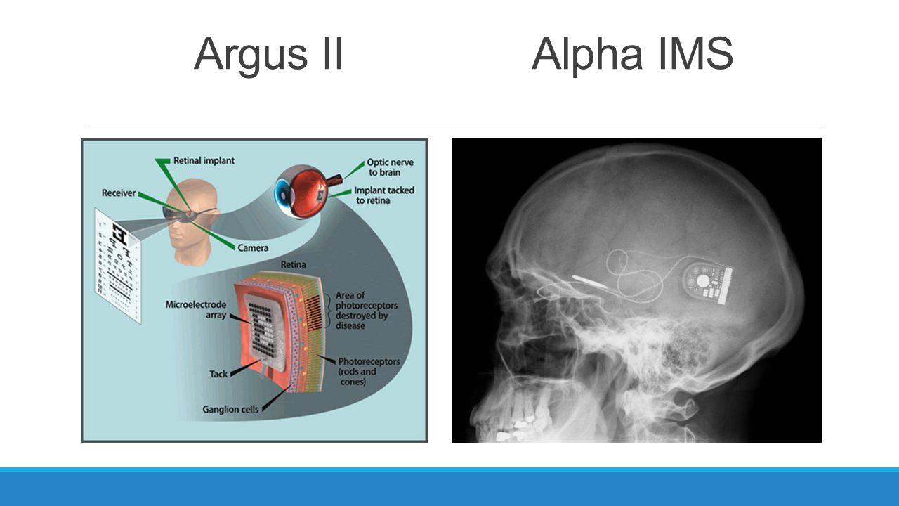 Argus IIAlpha IMS