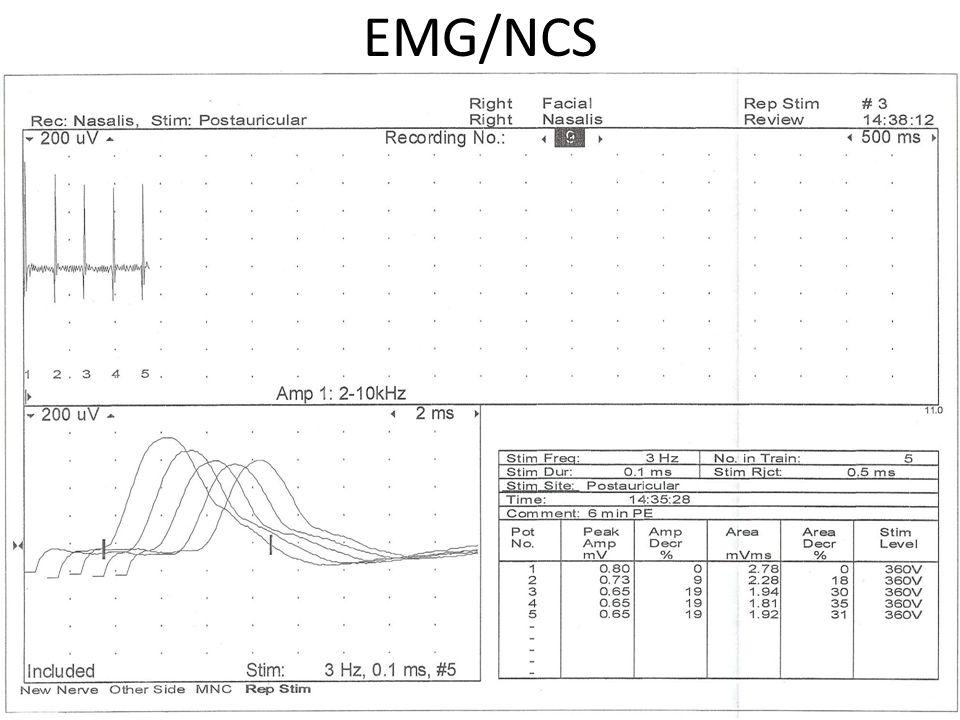 EMG/NCS