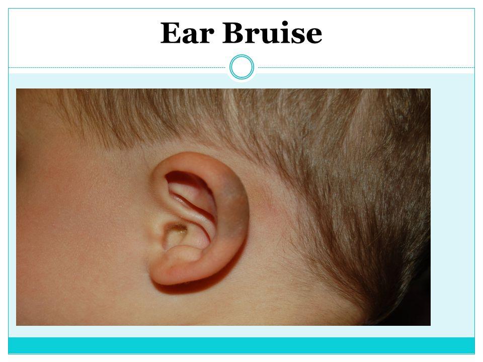 Ear Bruise