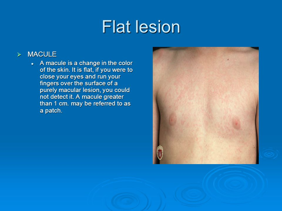 Elevated lesion  PAPULE is a solid raised lesion that has distinct borders and is less than 1 cm in diameter.