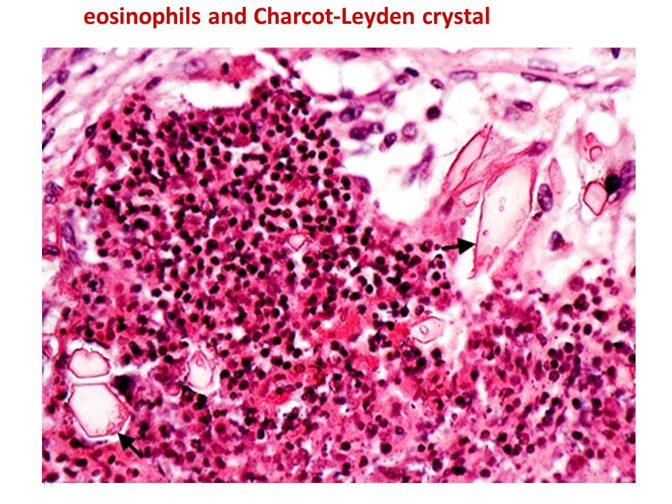 14 eosinophils and Charcot-Leyden crystal