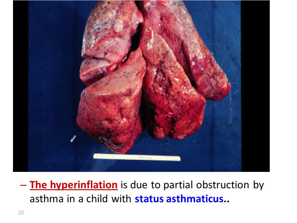 21 Hyperinflated lungs of a patient who died with status asthmaticus.