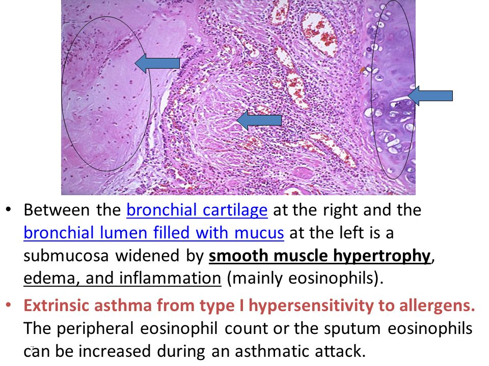 8 Epithelial hyperplasia, goblet cell hyperplasia (most of the epithelial cells here are goblet cells.