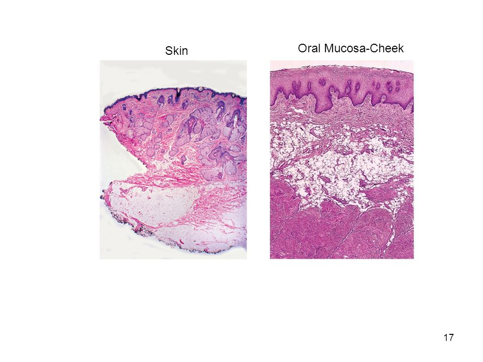 17 Skin Oral Mucosa-Cheek