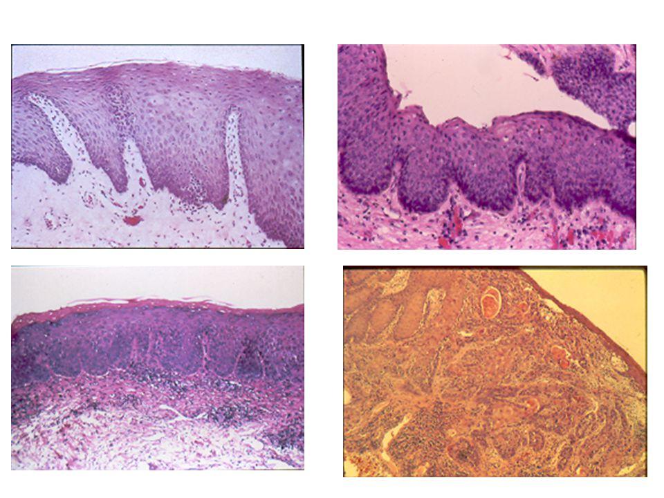 24 Types of Oral Epithelium Orthokeratinized stratified squamous epithelium Parakeratinized stratified squamous epithelium Nonkeratinized stratified squamous epithelium