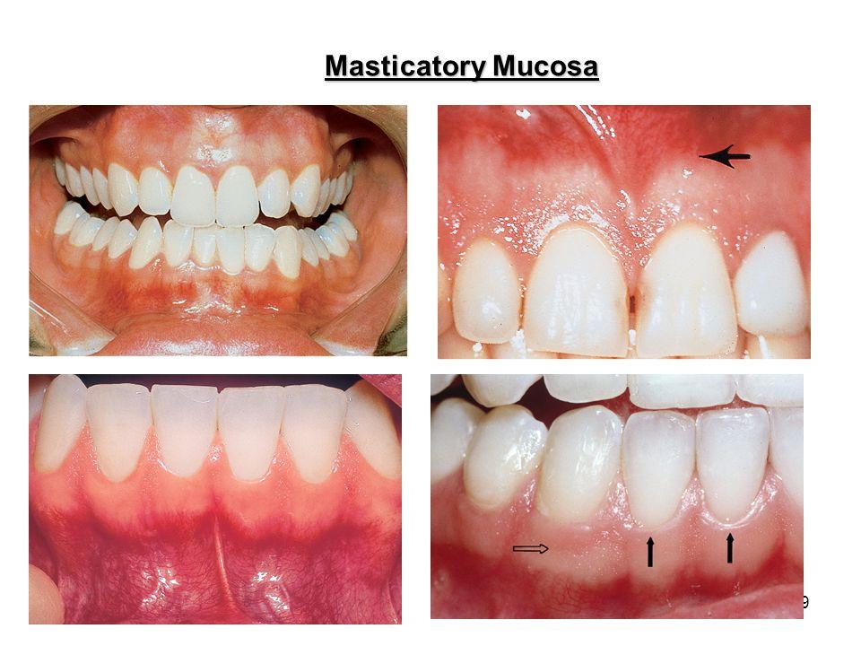 10 Masticatory Mucosa