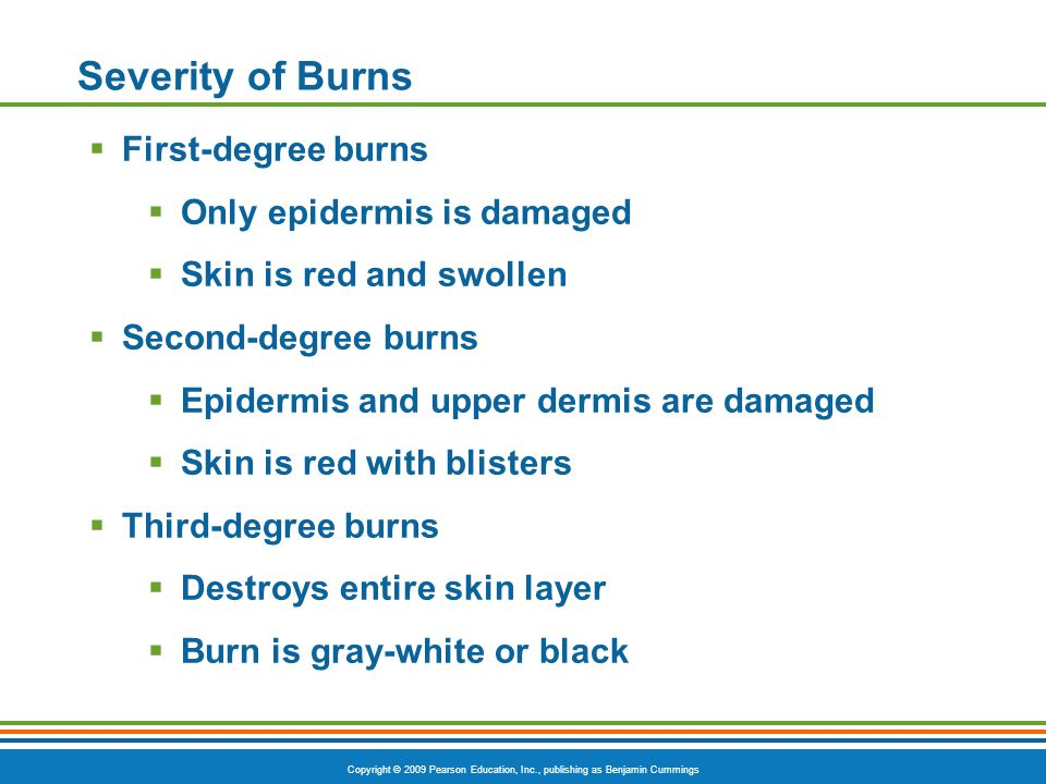 Copyright © 2009 Pearson Education, Inc., publishing as Benjamin Cummings Severity of Burns  First-degree burns  Only epidermis is damaged  Skin is