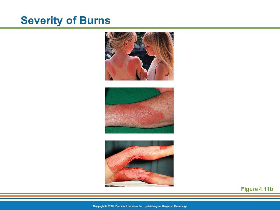 Copyright © 2009 Pearson Education, Inc., publishing as Benjamin Cummings Severity of Burns Figure 4.11b