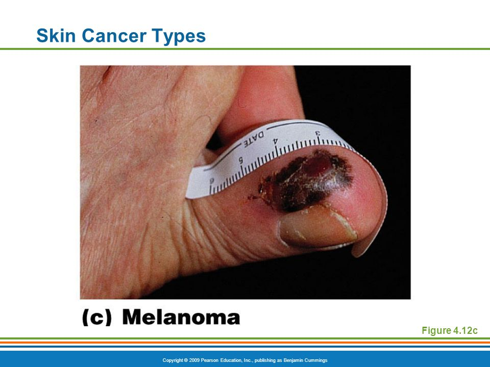 Copyright © 2009 Pearson Education, Inc., publishing as Benjamin Cummings Skin Cancer Types Figure 4.12c